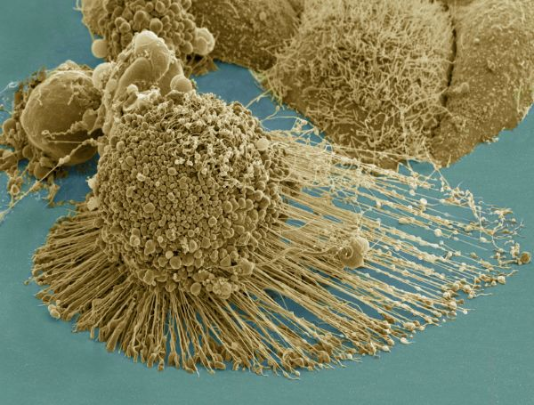 "There Exists an ""Immortal"" Cancer Cell."