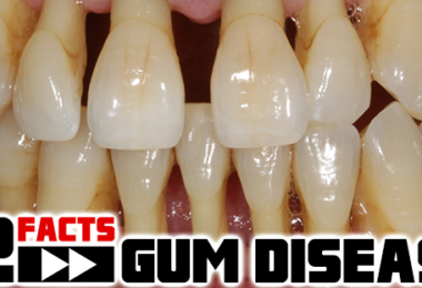 gum-disease-facts