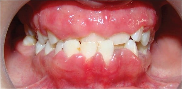 Is Your Gums Bleed When You Brush Your Teeth 12 Gum