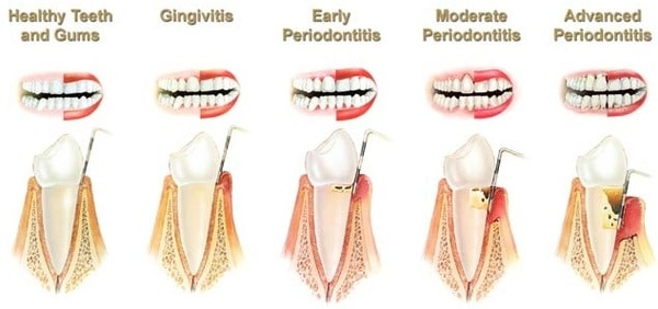 There Are Different Type of Periodontal Diseases!